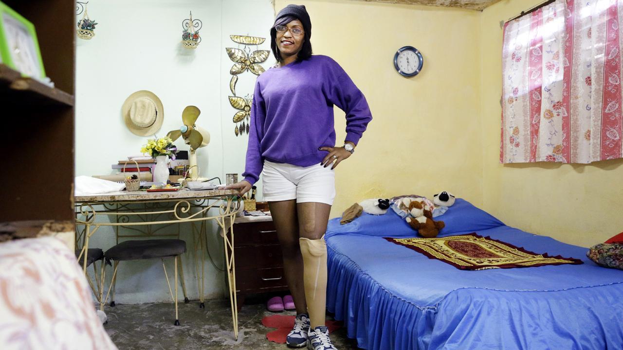 <strong>Salsa tanzen mit neuem Bein:</strong> Dolmetscherin Leisé González ist begeistert sie von ihrer neuen Prothese. Gefertigt haben sie kubanische Techniker, weitergebildet von der deutschen Firma Ottobock. Die GIZ unterstützt diese Qualifizierungen im Rahmen des Programms develoPPP.de des Bundesministeriums für wirtschaftliche Zusammenarbeit und Entwicklung.<em>Foto: Sven Creutzmann</em>